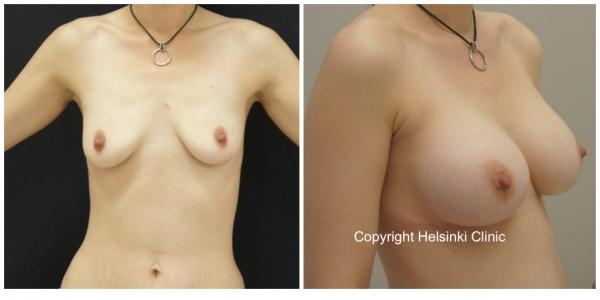 Suurennusleikkauksen tulos