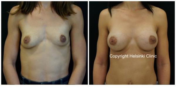 silikonirinnat ennen ja jälkeen