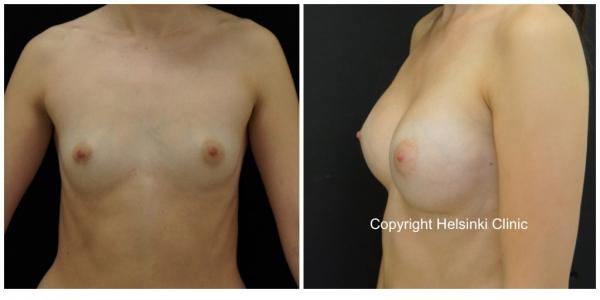 Janne Jyrängin suorittama rintojen suurennusleikkaus