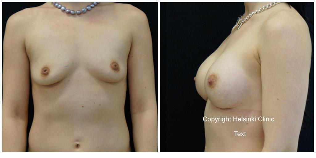 Rintojen suurennus ennen ja jälkeen