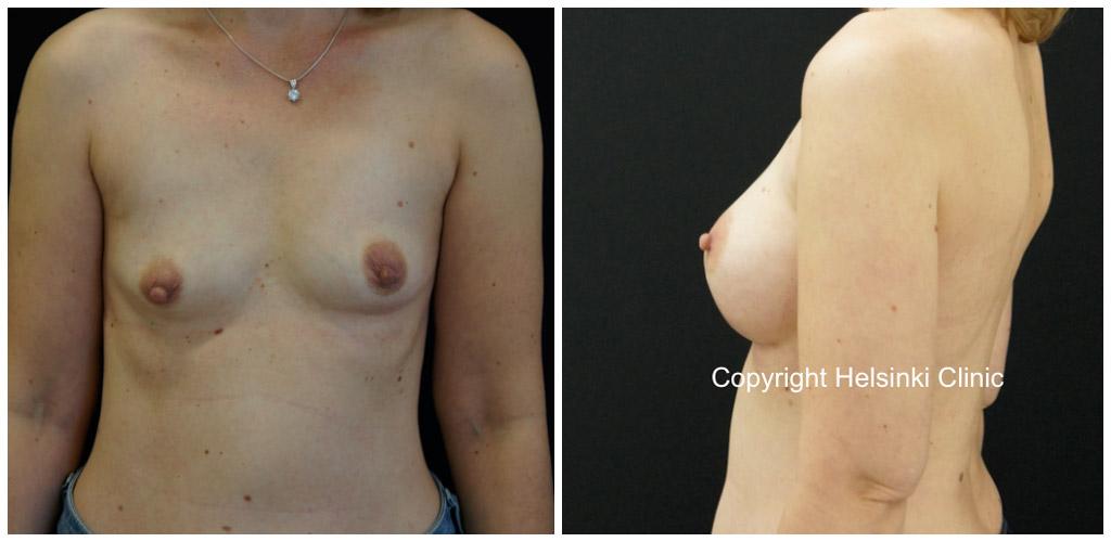 Rintojen suurennusleikkauksen tulos
